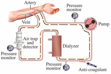 Hemodialysis and the Kidneys