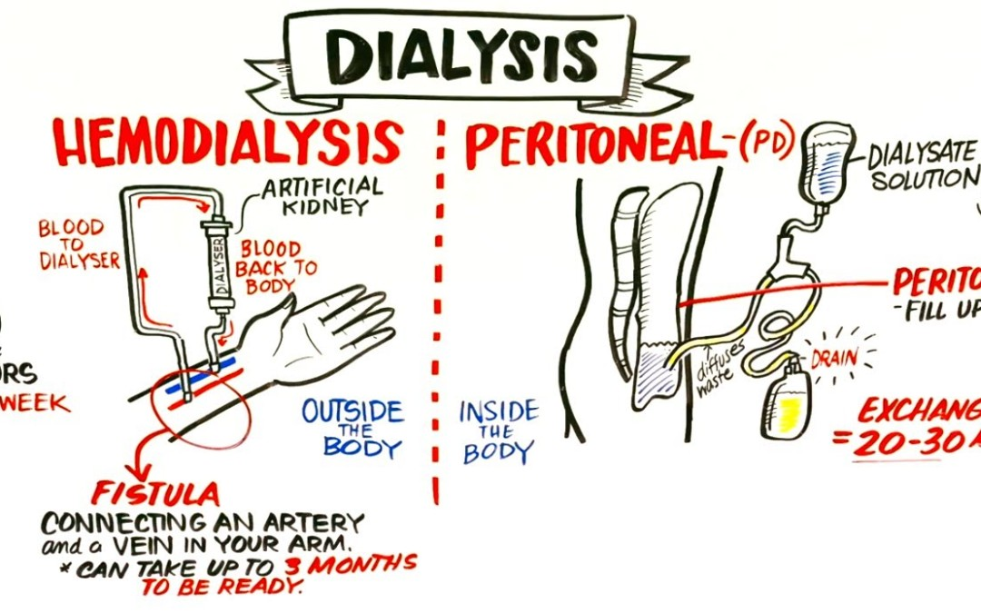 How Hemodialysis and Peritoneal Dialysis Work