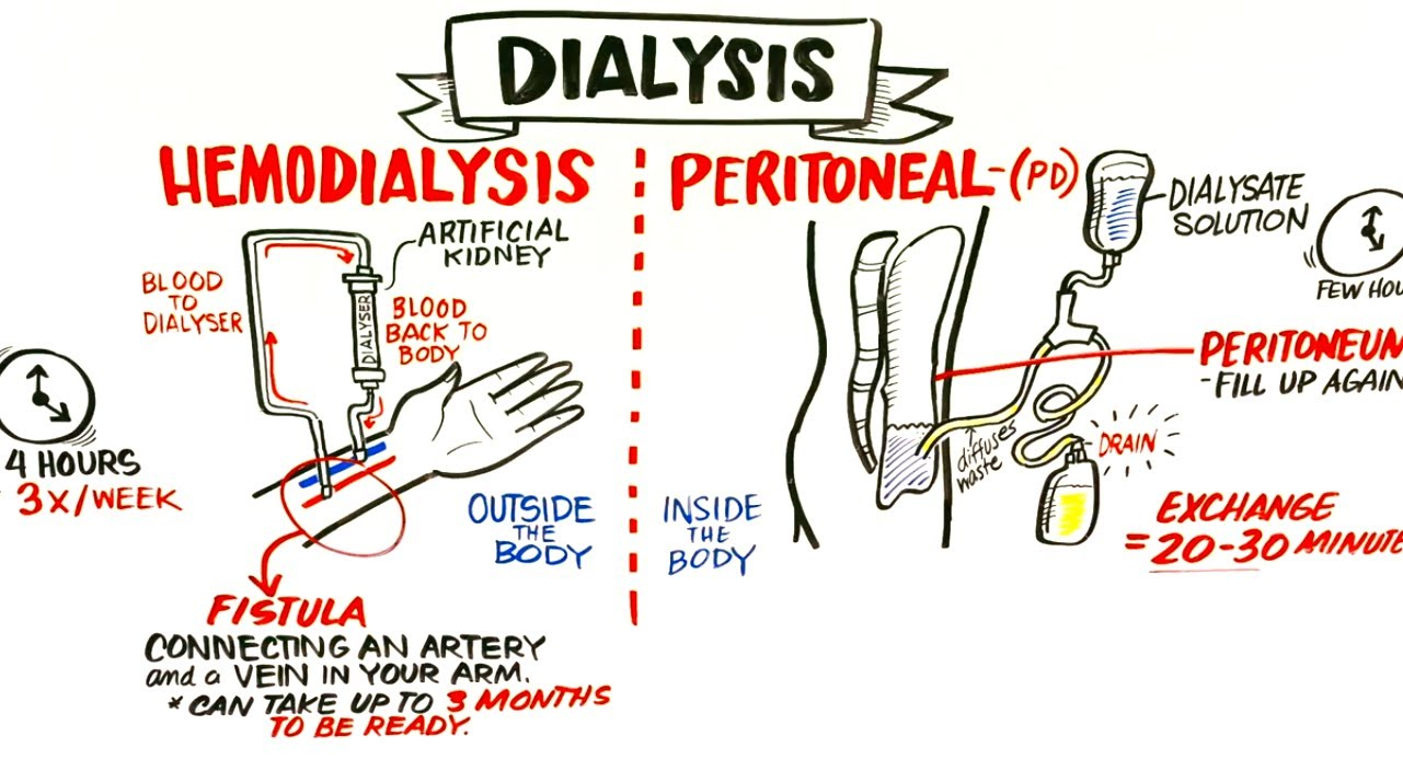 kidney dialysis Hope you enjoy the video don't forget to like and subscribe.