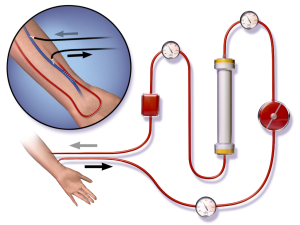 process-of-hemodialysis